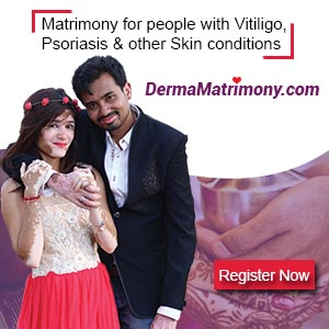Vitiligo leucoderma marriage matrimony brides grooms