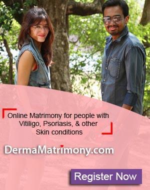 March - Unite For Vitiligo
