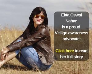 Beautiful Vitiligo Leucoderma woman awareness advocate