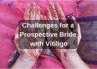 Prospective Vitiligo Leucoderma Bride challenges