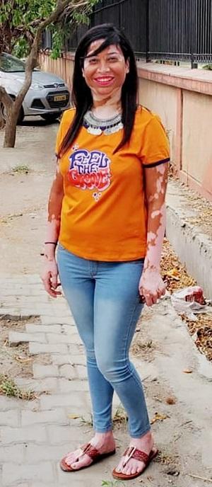 Vitiligo Acceptance beautiful Girl woman