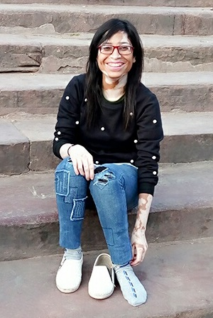 Vitiligo Girl Smiling