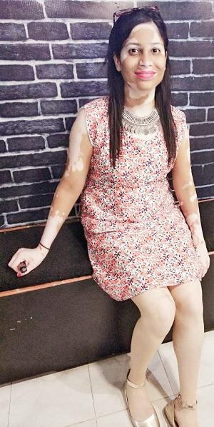 Vitiligo clothing beautiful woman short dress